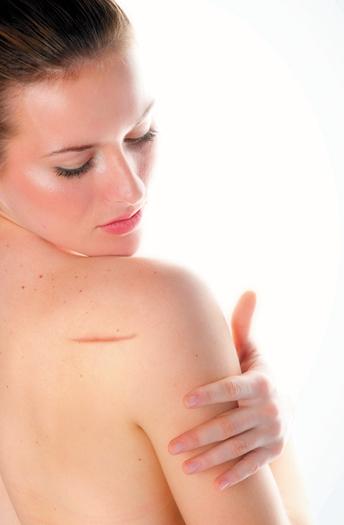 Eliminación de las cicatrices y estrias