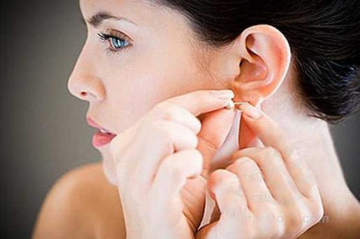 Lóbuloplastia o corrección del lóbulo rasgado